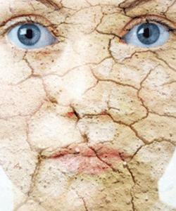 Экзема. Кожные заболевания: Кембриджское питание и БАД ВитаЛайн